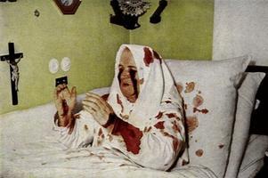H Therese Neumann, που το 1926 ξεκίνησε να εμφανίζει σττίγματα κάθε Παρασκευή για 32 χρόνια
